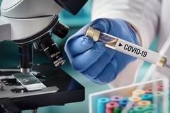Coronavirus, oggi undici nuovi casi nella Bat
