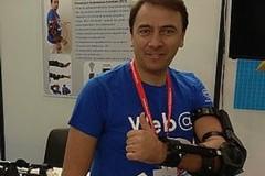 Gesso al braccio addio? Ecco NeverMind, la protesi ideata dall'ingegnere tranese Fabrizio Granieri