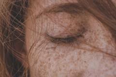 Impurità della pelle: quando usare un detergente viso delicato