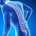 Da Pennetti Lab una giornata dedicata alla prevenzione dell'osteoporosi